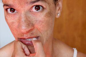 Les onguents de pharmacie pour la personne des taches de pigment